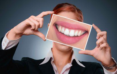 Dantų kabės – populiariausia ortodontų verslo prekė